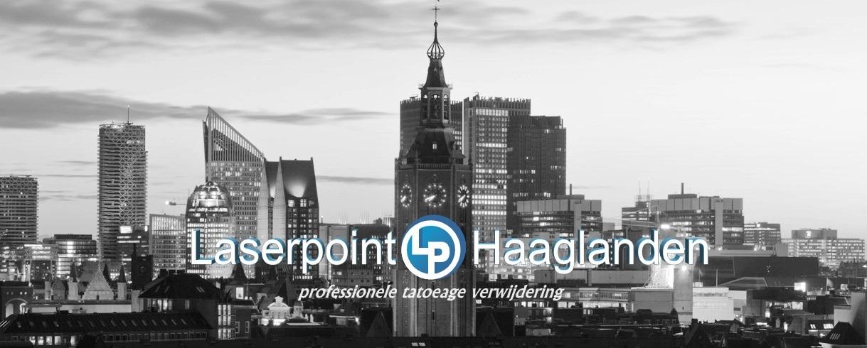 Laserpoint-Haaglanden.nl
